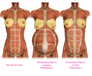Diastasis-Illustration
