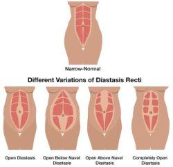 diastasis 4 kinds